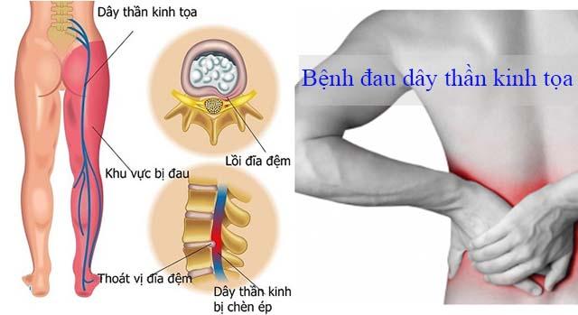 Cách nhận biết đau dây thần kinh tọa