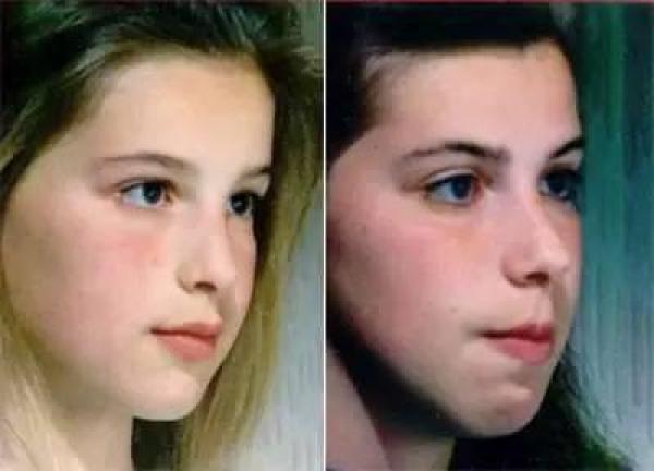 Cảnh báo: Thói quen thở bằng miệng khi ngủ khiến bạn trở nên xấu xí, ảnh 2 chị em gái sẽ thấy rõ