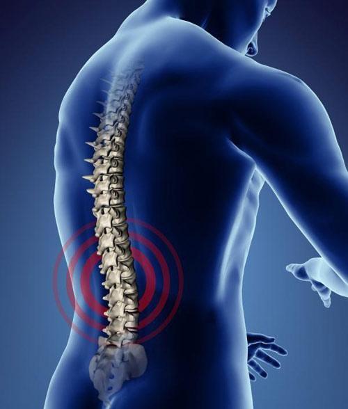 Chữa đau lưng bằng sóng radio
