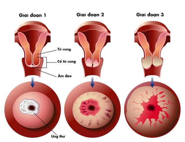 Kiến thức chung về bệnh ung thư cổ tử cung