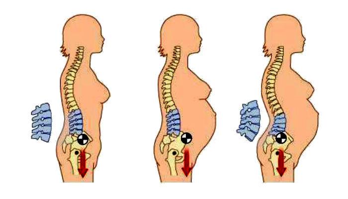 Bệnh đau lưng khi mang thai bà bầu cần biết