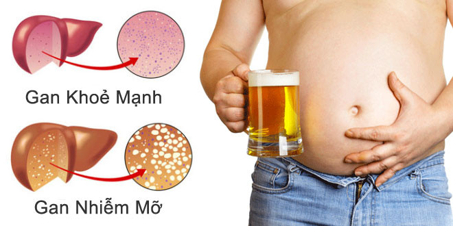 gan bị nhiễm mỡ do rượu bia