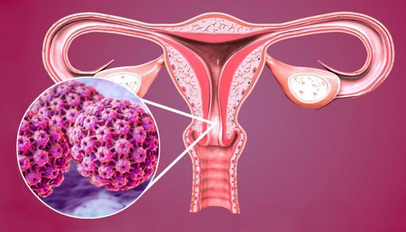 Hiểu đúng về virus HPV gây ung thư