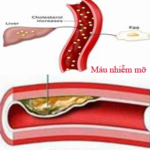 Mỡ trong máu (máu nhiễm mỡ) là bệnh gì?
