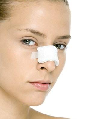 Mắc bệnh viêm xoang có nên nâng mũi?