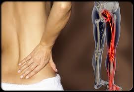 Tiết lộ cách nhận biết đau dây thần kinh tọa